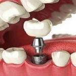 Tooth Implant Surgery Process