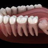 Wisdom Tooth Extraction Near Me