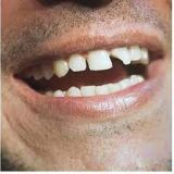 Signs and Symptoms of Cavity Broken Tooth