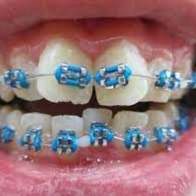 Choose The Best Colors For Your Braces